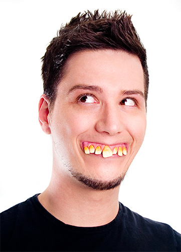 Zähne, Heiraten