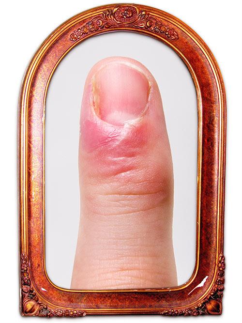 Fieser Finger