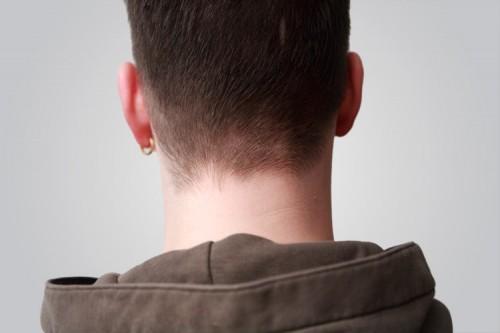 Kopf von hinten